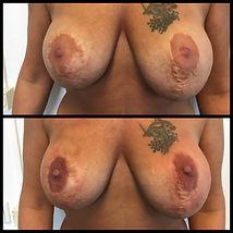Tepelhof correctie middels dermatografie direct na de behandeling.