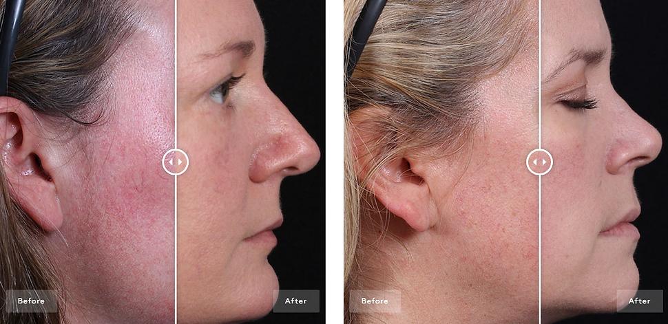 Voor en na foto na gebruik All Calm Clinical Redness Corrector SPF 50