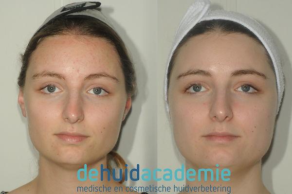 Resulaat met ZO Skin Health