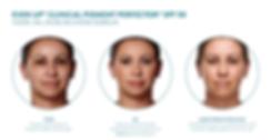 Vermindering pigmentvlekken voor, tijdens en na gebruik EVEN UP® Clinical Pigemnt Perfector