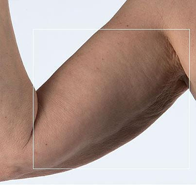 Na foto NuBODY behandeling bovenarm