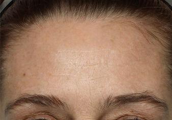 Na foto NuFACE TRINITY behandeling