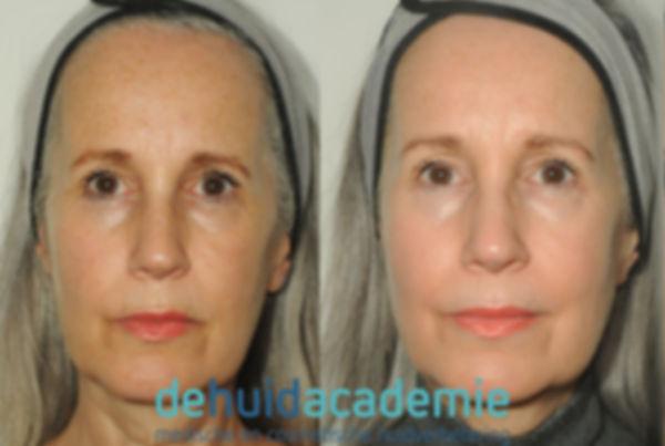Leonie Pijpers, resulaat ZO Skin Health