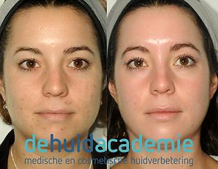 Loes Vonk product gebruik ZO Medical en ZO Skin Health producten.