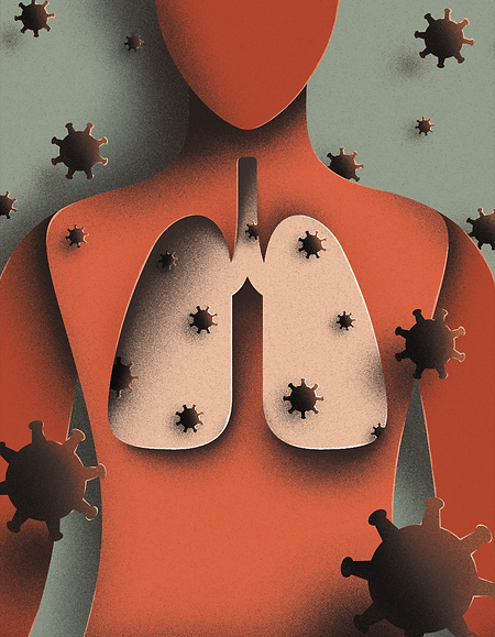 Illustration contains a drawing of a human torso and lungs, with COVID-19 viruses floating around, in the style of paper cutouts.