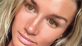 acne girl transformed.jpg