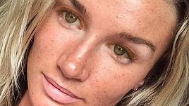 acne girl.jpg