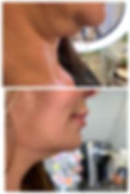 kybella 3.jpg