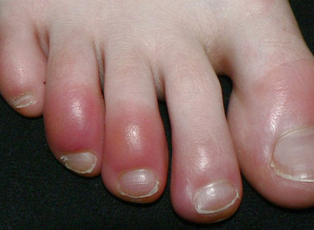 What You Need to Know About Covid Toes?