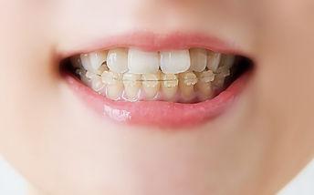 歯科矯正の女性