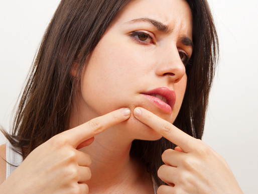 These five habits may be causing acne breakouts; here's what to do.