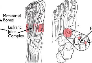 Lisfranc injuries - the hidden injury