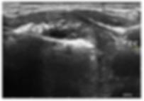 Ablazione Percutanea Tiroide