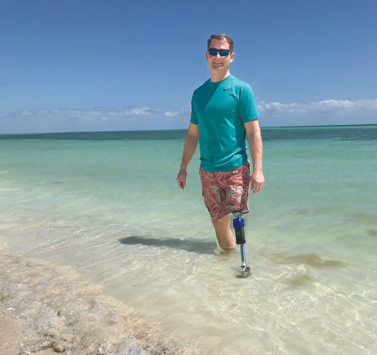 Pete is an AK and prosthetist who wears the All-Terrain Knee Premium to go to the beach and kayak with his family