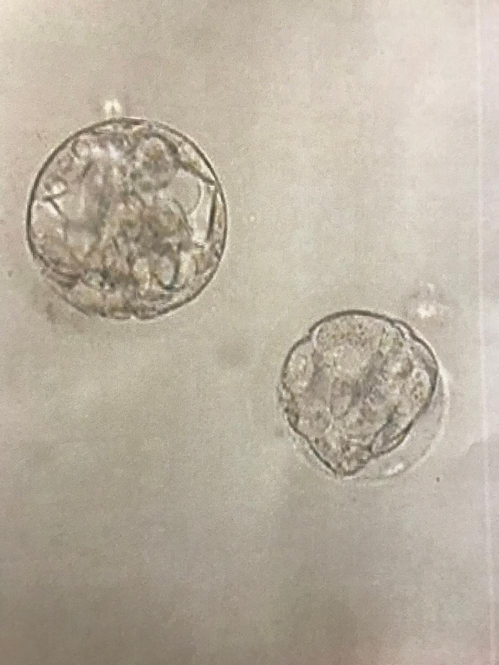 Physician Infertility Embryos