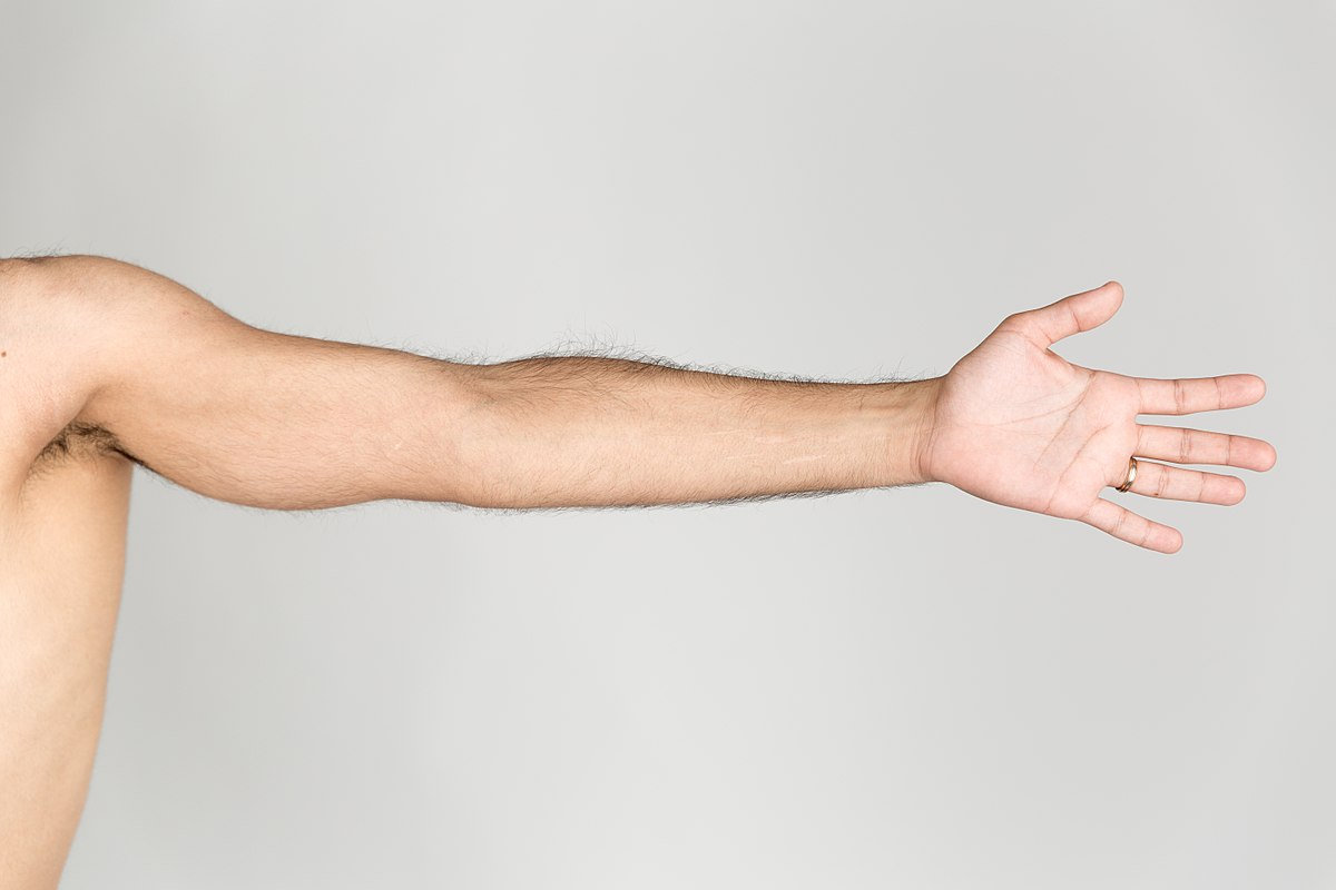 Laserontharing hele arm