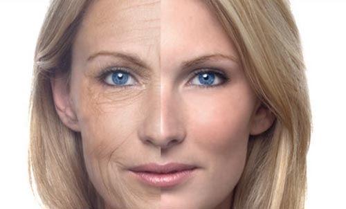 Wrinkle Peel