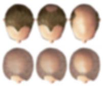 hairloss.png