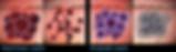 O primeiro laser dermatológico do mundo que opera em Picosegundos, e sem fototermólise! O Picosureusa os maiores avanços científicos recentes possibilitando aplicações clínicas nunca disponíveis anteriormente, sem dor e sem downtime. Quando ele é usado com suas Lentes Focus, exclusivas e patenteadas, ele cria vacúolos LIOBs (Laser-Induced Optical Breakdowns) para iniciar uma Sinalização Celular, provocando a produção de colágeno e elastina nos tratamentos de rugas, textura da pele e cicatrizes de acne. Comprimento de onda 755 nm, e 532/1064 nm opcionais.