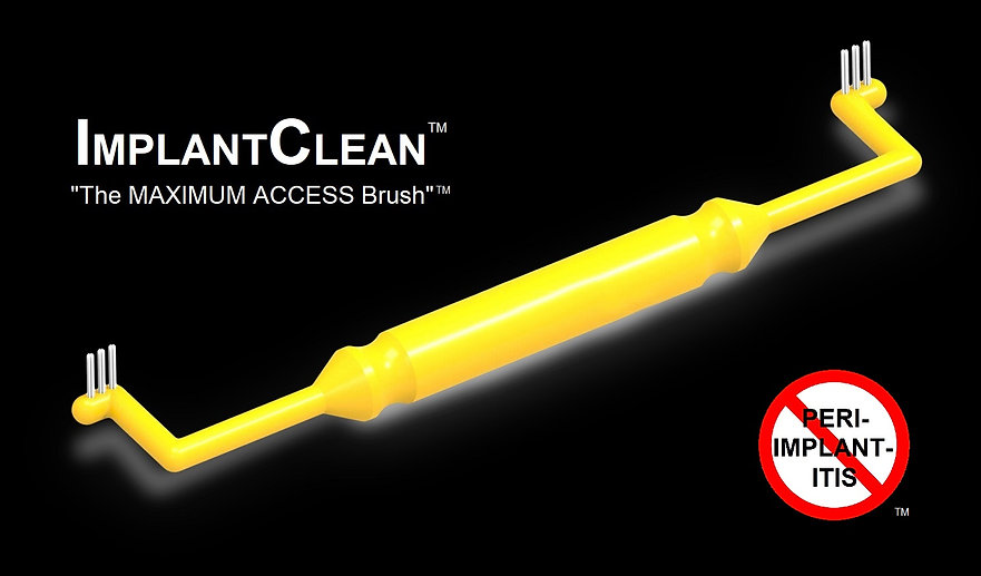 ImplantClean Toothbrush