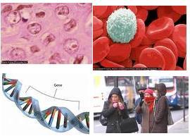 Causas de la Esclerosis Múltiple