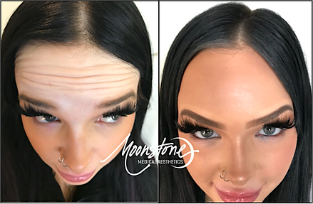 Botox Before And After.png