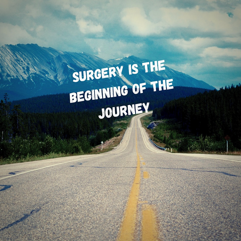 How to be successful after bariatric surgery