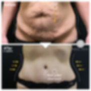 Abdominoplasty 2.png