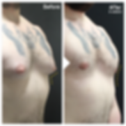 Gynaecomastia Reduction 2.png