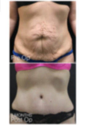 Abdominoplasty 1.png