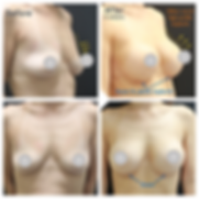 Breast Augmentation 1.png