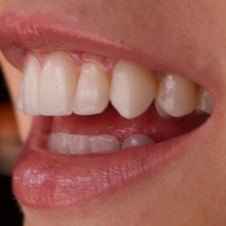 Teeth Whitening at Home Review