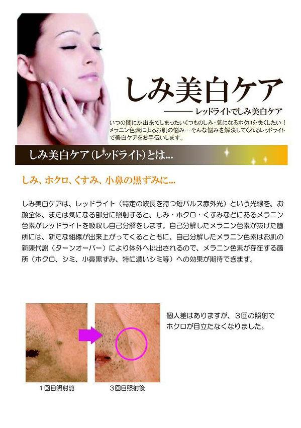 TenpRich(テンプリッチ)エステ・シミ・クスミ・赤ら顔・ほうれい線にレッドライト画像