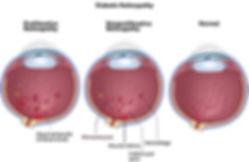 diabetic retinopathy 2.jpg