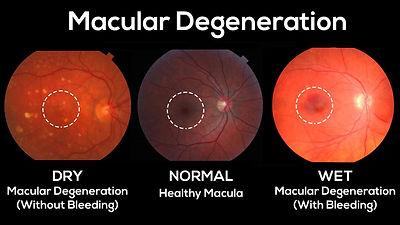 macular degeneration.jpg