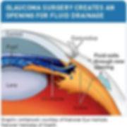 glaucoma surgery.jpg