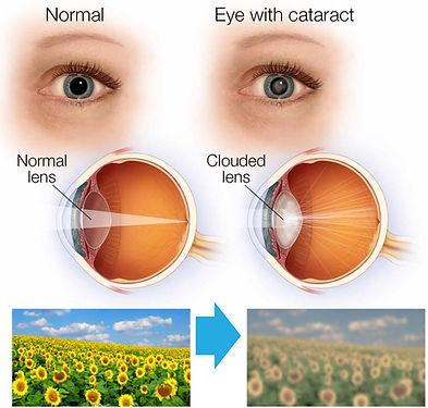 cataract 3.jpg