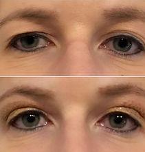 fibroblast ogen.jpg