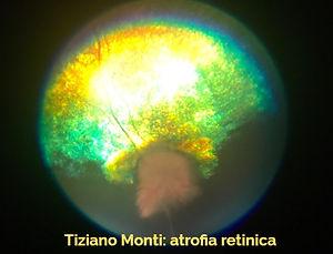 atrofia%20retina-clinvetmonza_edited.jpg