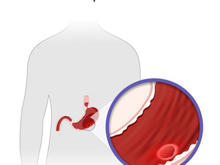 How Traditional Chinese Medicine  view and treatment Peptic Ulcer