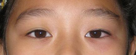 Ptosis, Eyelids