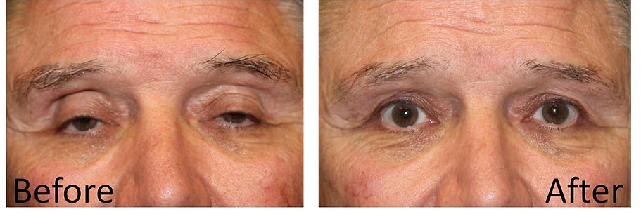 Best dallas eyelid surgeon
