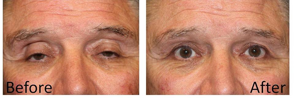 Best dallas eyelid surgeon