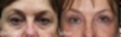 how to fix eye wrinkles