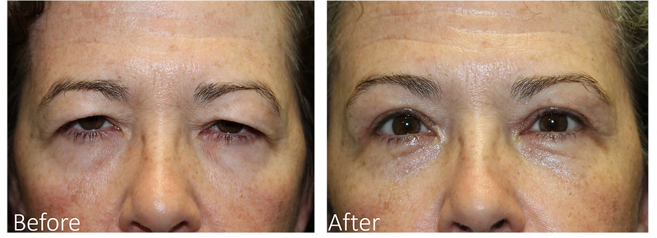 Natural Brow Lift