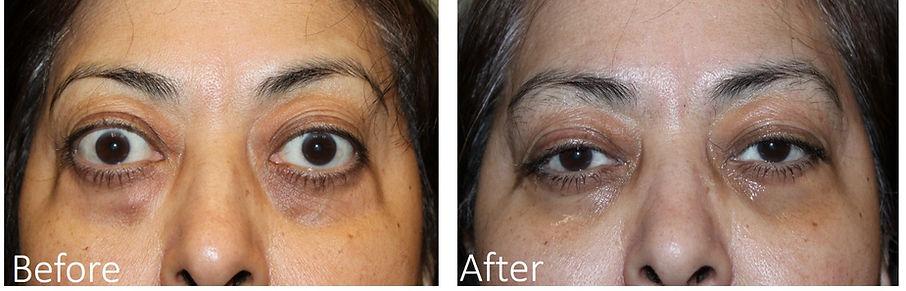 Dalls Bulgy Eye Surgery