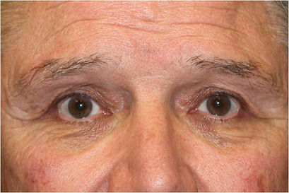 Dallas droopy eyelid surgery