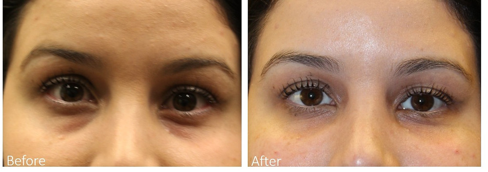 Best under eye filler Dallas