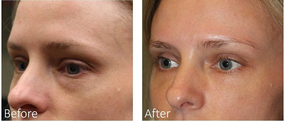 Filler for bags under eyes