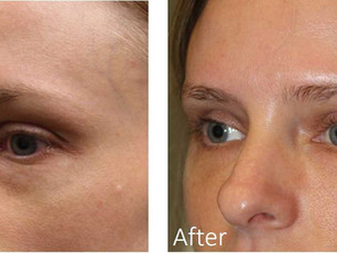 How to improve puffiness under eyes without surgery
